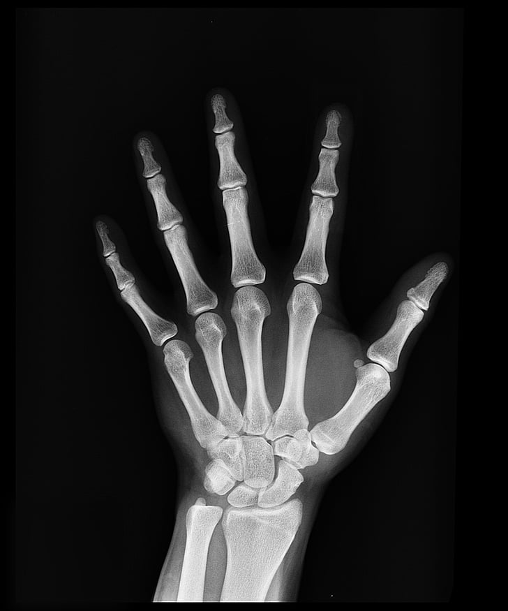 Royalty-Free photo: Hand x-ray | PickPik
