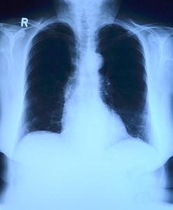 X-ray photo