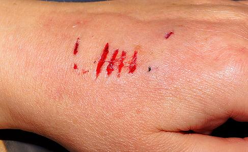 human skin condition