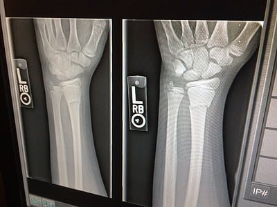 x-ray, medical, broken, arm, doctor, x ray