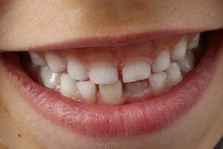 person white teeth