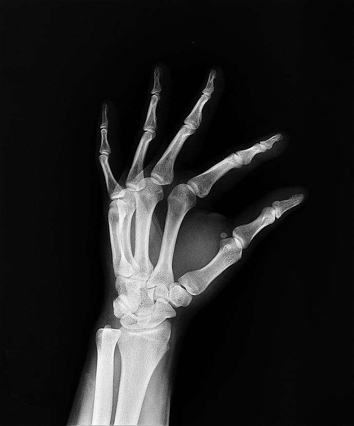 Royalty-Free photo: Hand X-ray | PickPik