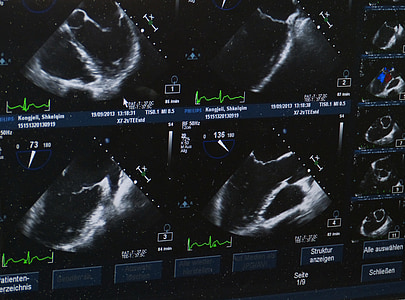 CT scan result