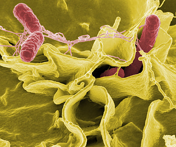 microbial photo